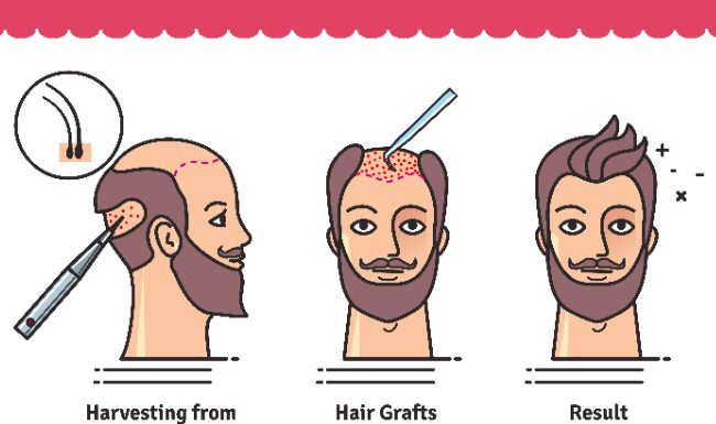 Are There Any Good Hair Transplant Doctors in Turkey for Operation?