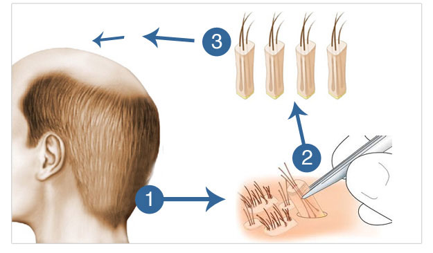 What Is FUE Surgery and How Is It Done?