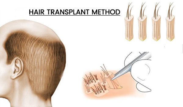 best hair transplant techniques