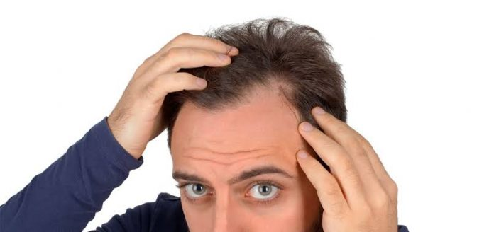 FUE hair transplant recovery timeline