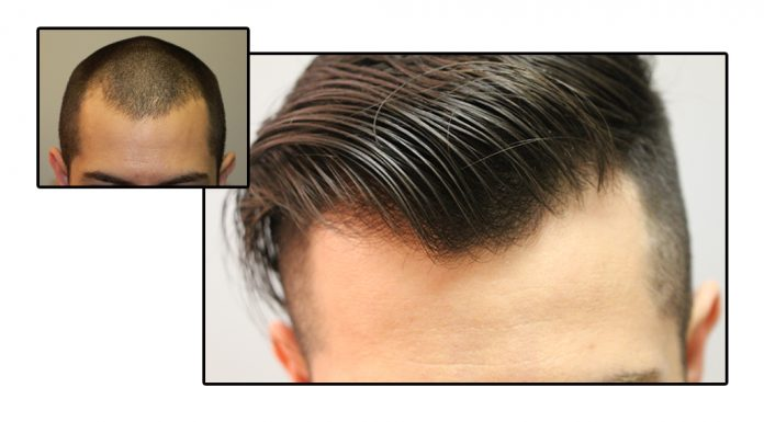 Hair transplant and PRP